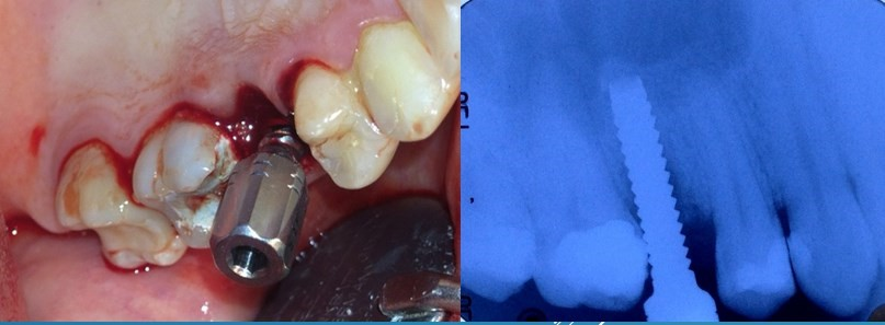 Sinus Floor Elevation And Implant Placement : Dental forum online education case details