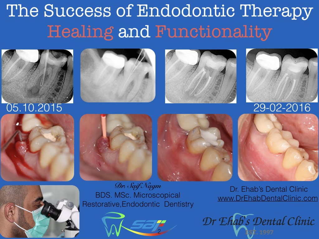 dental forum online dental education case details the success of endodontic therapy healing and functionality