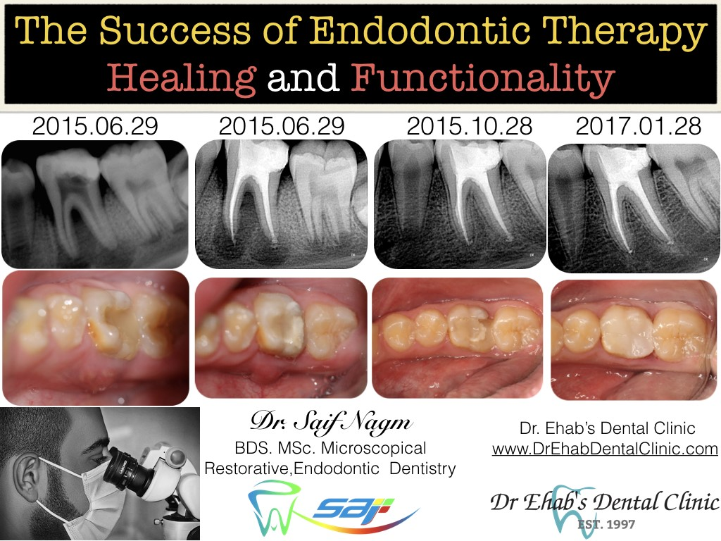 also longer follow ups may be required for larger lesions and long term prognosis of endodontic treatments